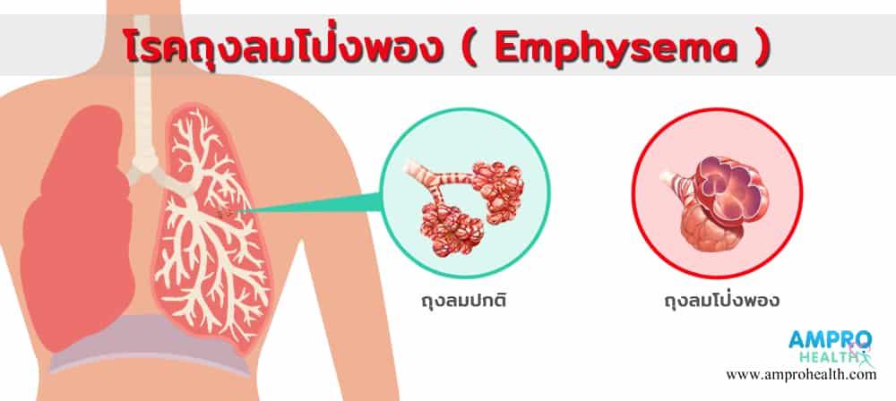 โรคถุงลมโป่งพอง ( Emphysema )