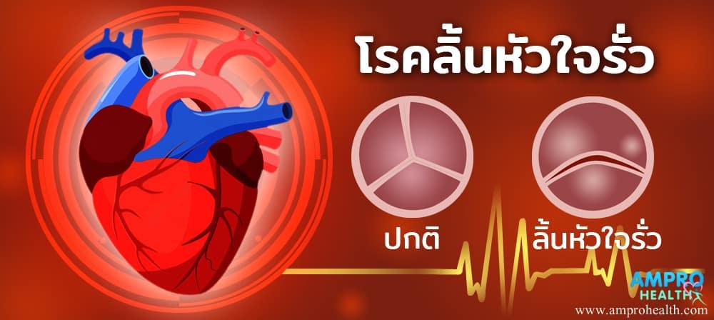ลิ้นหัวใจรั่ว ( Heart Valve Regurgitation ) เป็นอย่างไร