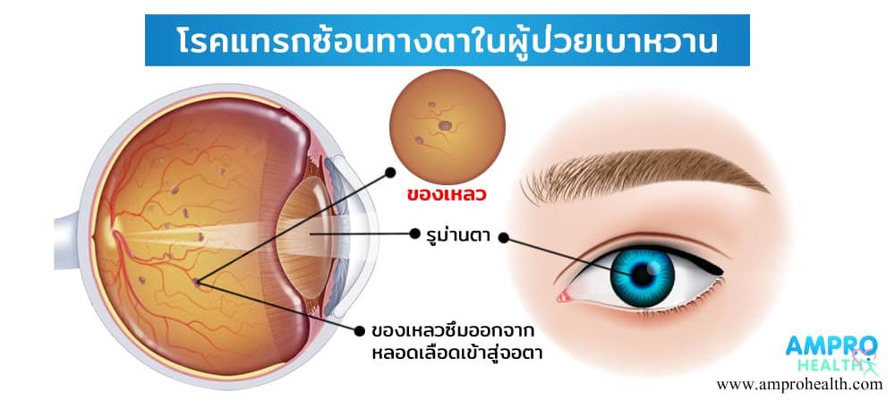 โรคแทรกซ้อนทางตาในผู้ป่วยเบาหวาน