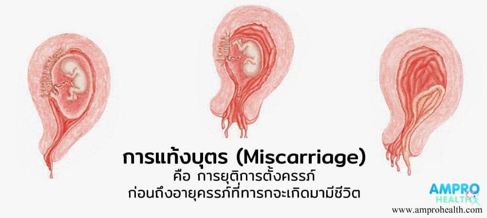 การแท้งบุตร หรือการแท้งลูก ( Miscarriage ) เกิดได้อย่างไร