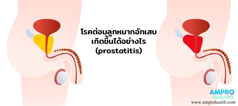ต่อมลูกหมากอักเสบ ( Prostatitis ) เกิดขึ้นได้อย่างไร