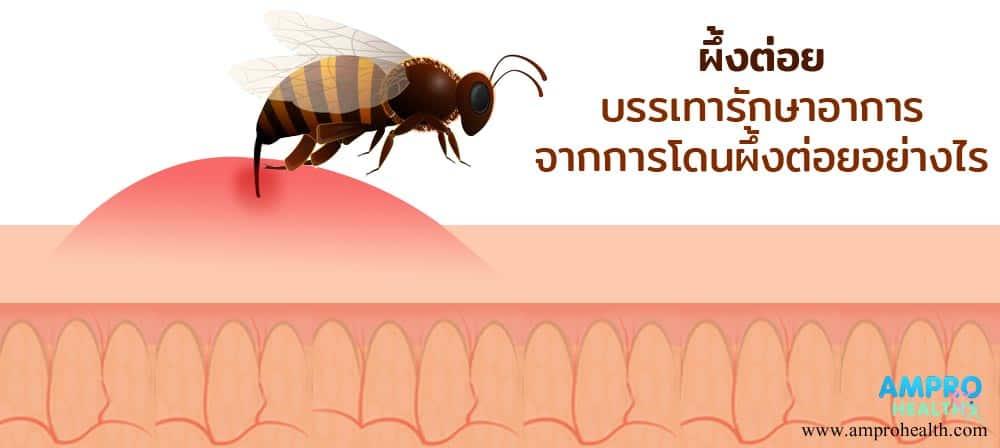ผึ้งต่อย บรรเทารักษาอาการจากการโดนผึ้งต่อยอย่างไร