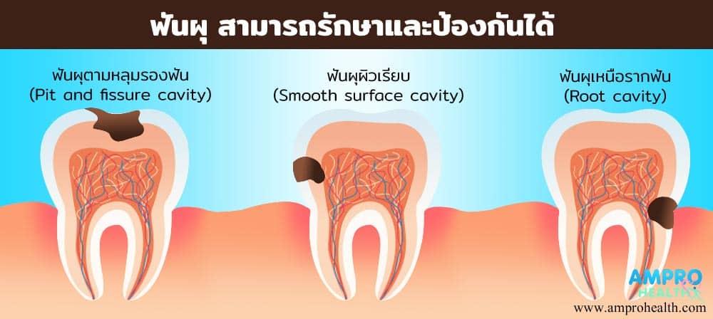 ฟันผุ สามารถรักษาและป้องกันได้