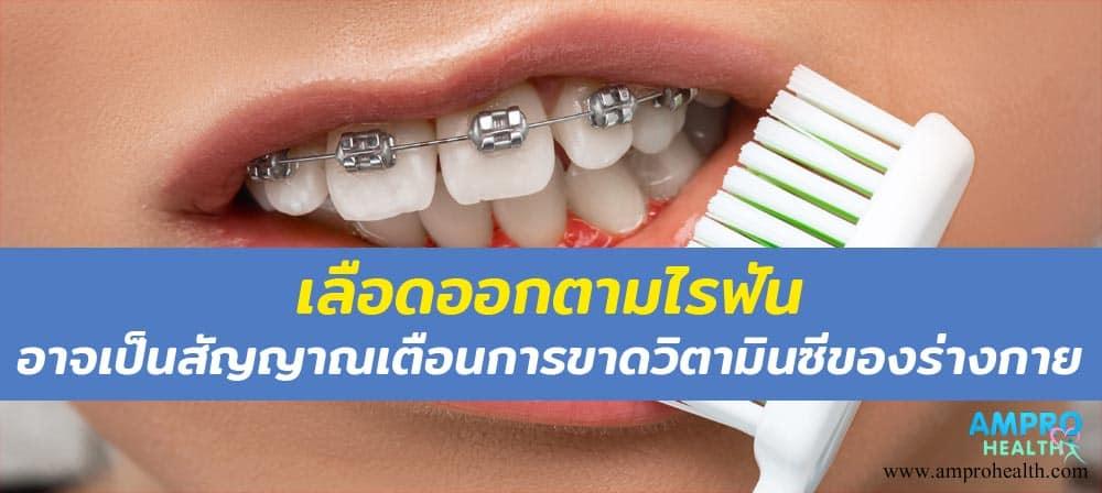 โรคเลือดออกตามไรฟัน หรือ โรคลักปิดลักเปิด